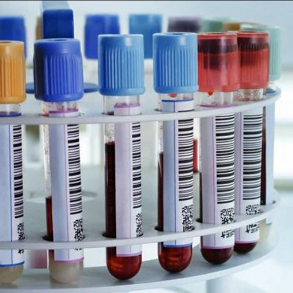 Smart Blood Tests - BUY NOW!